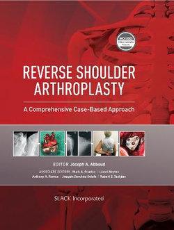 Reverse Shoulder Arthroplasty