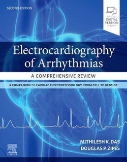 Electrocardiography of Arrhythmias: a Comprehensive Review