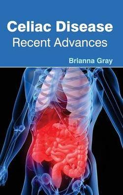 Celiac Disease: Recent Advances